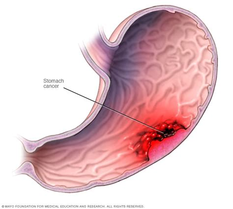 And Cancer by Stomach Cancer Symptoms And Causes Mayo Clinic