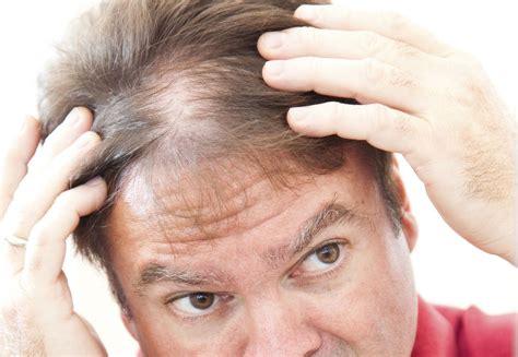 hair thin thinning hair remedies can stop hair loss hsg com