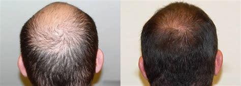 how is loop hair transplant done ziering whorl ziering medical