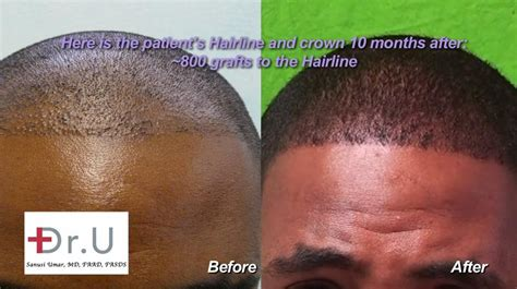 fue vs strip special techniques used for african american hair