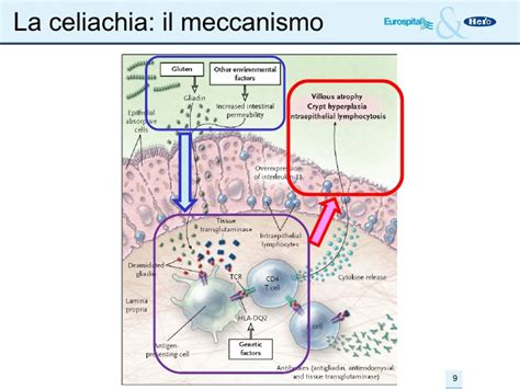 celiachia test farmacia celiachia xeliac test
