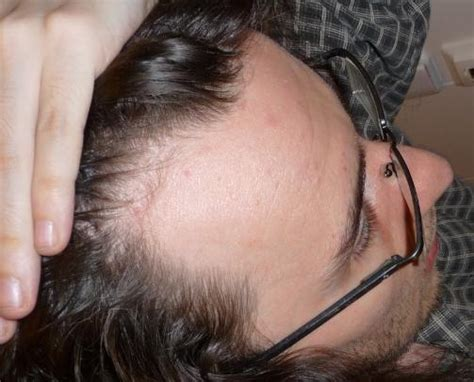thin fine hair around the temples what haircut my hair is thinning and falling out what can i do