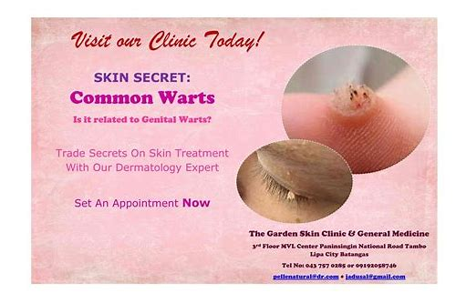warts removal coupon philippines