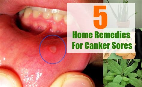 canker sore home treatment salt clinic