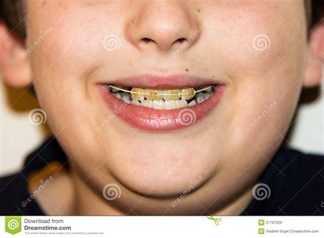 braces and white teeth of smiling boy brackets medicine