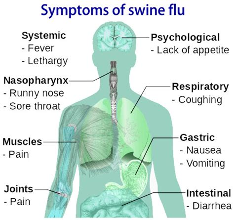 swing flu swine flu causes swine flu