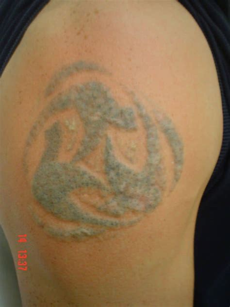 tattoo removal birmingham ink tattoo studio