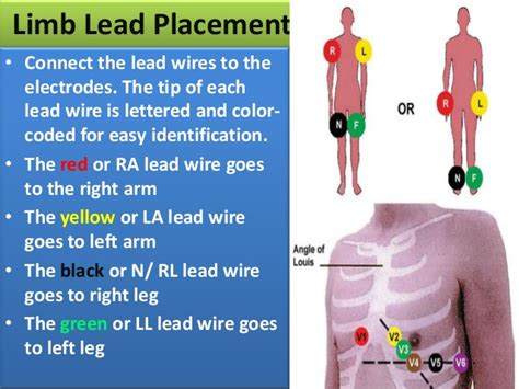What Color Goes With Yellow And Red by Nursing Procedure Obtain 12 Lead Ecg
