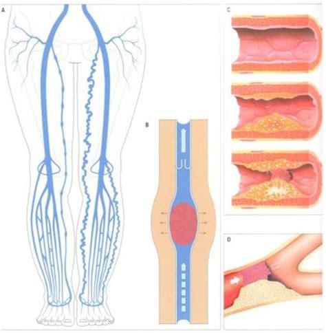 innere thrombose lungenarztpraxis tegel lungenembolie