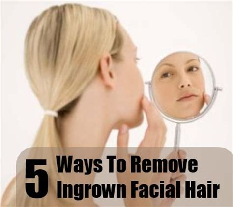 how to treat an ingrown hair on chin 1000 ideas about ingrown facial hair on pinterest razor