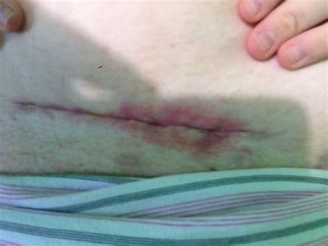 C Section Incision Swelling by Dose C Section Scare Look Infected 2 Weeks Pp July