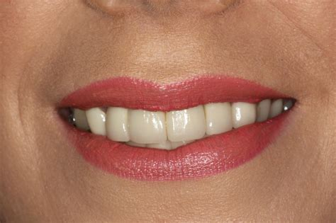 veneers    smile dental blog bounty road