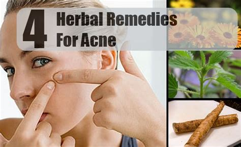 Effective Home Remedies For Acne by 4 Effective Herbal Remedies For Acne Ways To Get