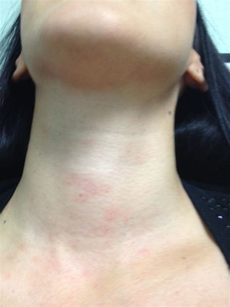 mcguiness spray hair caballo y amazona lecciones a la itchy rash on back of neck rash on neck itchy red lupus