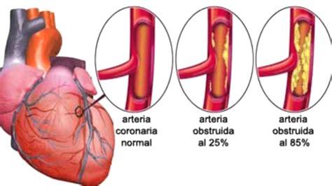l infarto del miocardio infarto de miocardio 191 qu 233 hacer youtube