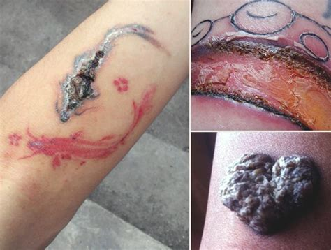 tattoo infection scab infected tattoo related keywords infected tattoo long