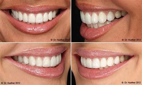 false teeth teeth veneers teeth teeth implants
