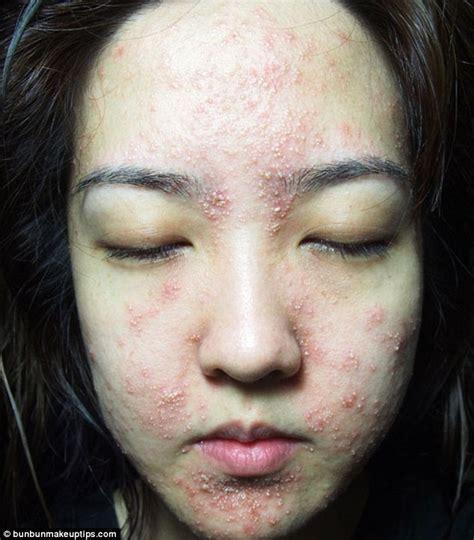Eyeshadow Jadi Eyeliner singapore bun bun suffers horrific skin reaction to spa treatment