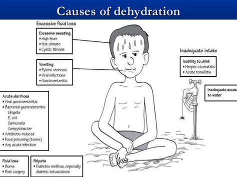 dehydration of dehydration lecture