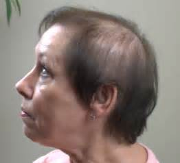 hairstyles for thinning crown women with thinning hair