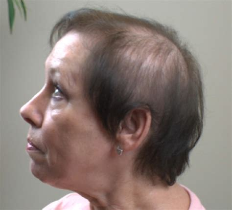 Woman With Extremely Thinning Hair | thinning hair women hairstyle for women man