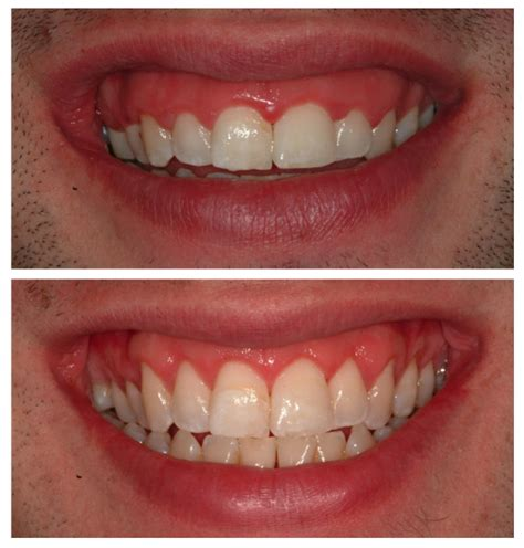 surgical esthetic correction for gingival pigmentation periodontal plastic surgery by dr fabio rossini