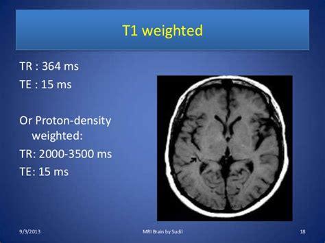 Proton Density Weighted Mri by Mri Procedure Of Brain