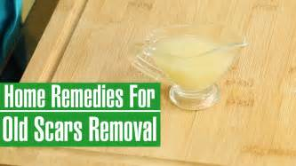 How To Remove Acne Scars Fast At Home by How To Remove Old Scars From Legs Amp Face Natural Scar