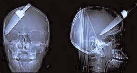 imagenes raras de humanos 25 cosas raras detectadas por rayos x en el interior del