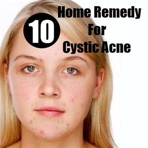 1000 ideas about cystic pimple on pimples