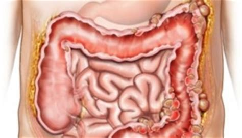 alimentazione per diverticoli intestinali colon irritabile