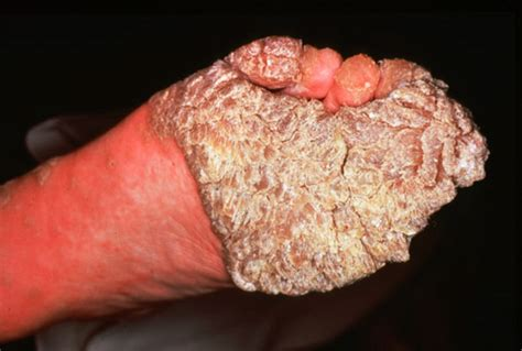 can dogs get hiv papilloma wart removal plantar wart treatment info