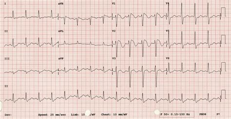 brugada pattern types brugada syndrome life in the fastlane ecg library