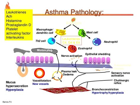 asthma diagram asthma diagram 28 images diagrams asthma disease