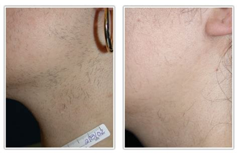 laser hair removal in centurion laser hair removal centurion laser hair removal