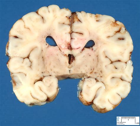 frontal section of brain brain frontal section 1 humpath com human pathology
