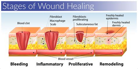 Stages Of Surgical Wound Healing Pictures