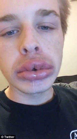 kim kardashian shot glass lips people who failed at the kylie jenner lip challenge