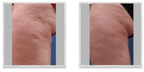 home cellulite laser cellusmooth cleveland cellulite improvement treatments
