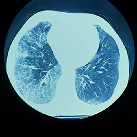 idiopathic pulmonary fibrosis the lancet the lancet 01 april 2017 volume 389 issue 10076 pages