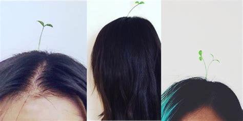 Jepitan Rambut Bunga Gurita Sedang 45cm di atas kepala wanita china kini dapat ditemui tunas kecambah update 27 04 2018