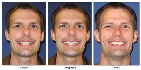 smilepix   imaging examples