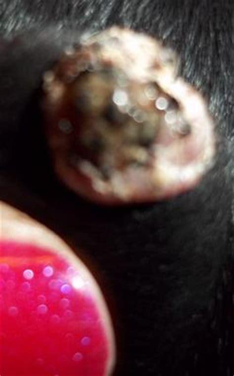 wart on s ear update on s ear wart