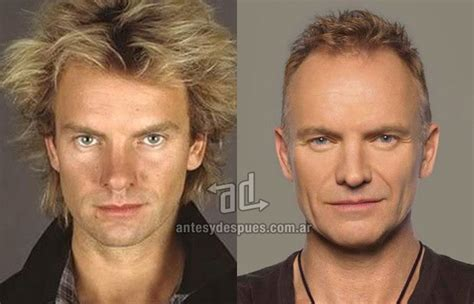 has sting had a hair transplant 187 celebrities who lost their hair before and after