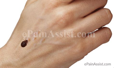 what causes bed bugs to come out bedbug bite treatment prevention ways to get rid of bed bugs