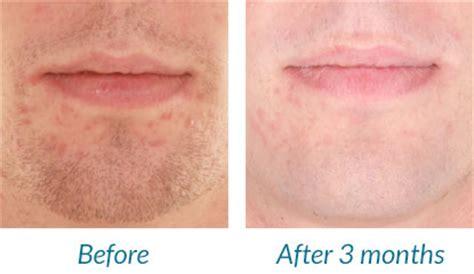Light Day Acne blue by silk n blue light acne treatment device
