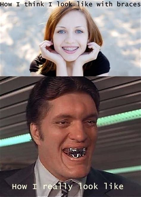 Braces Girl Meme - expectations vs reality meme dumpaday 26 dump a day
