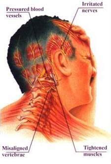Intisari Ilmu Penyakit Dalam tension headache nyeri kepala tegang otot blogcalondokter