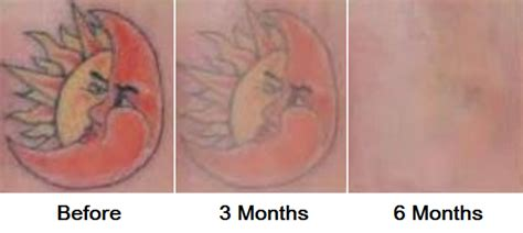 large tattoo removal before and after removal before after photos bunin md