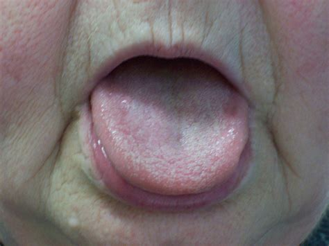healthy tongue color healthy tongue color pictures to pin on pinsdaddy